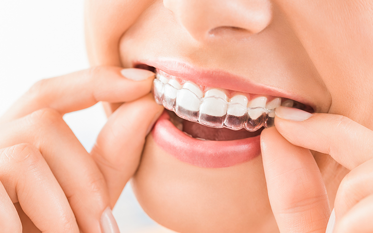 MHO-Is-Invisalign-Right-for-Me-768x480